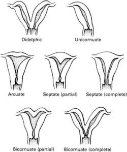 uterus-anomalies